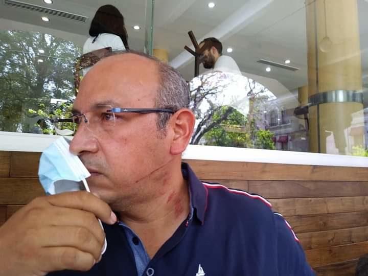 GOLPEAN Y DESPOJAN DE CAMIONETA A CANDIDATO DEL MORENA